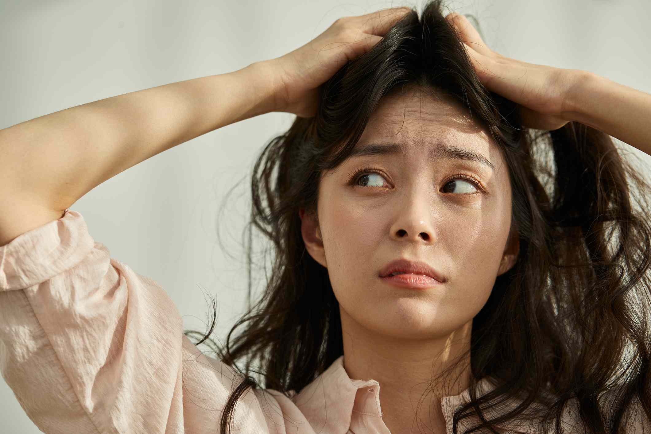 Woman Worried about Hair Loss and Dandruff