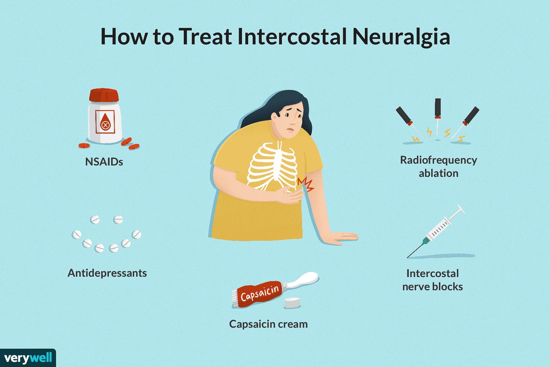 How to Treat Intercostal Neuralgia