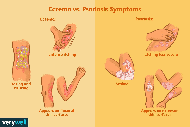 eczema or psoriasis on feet)