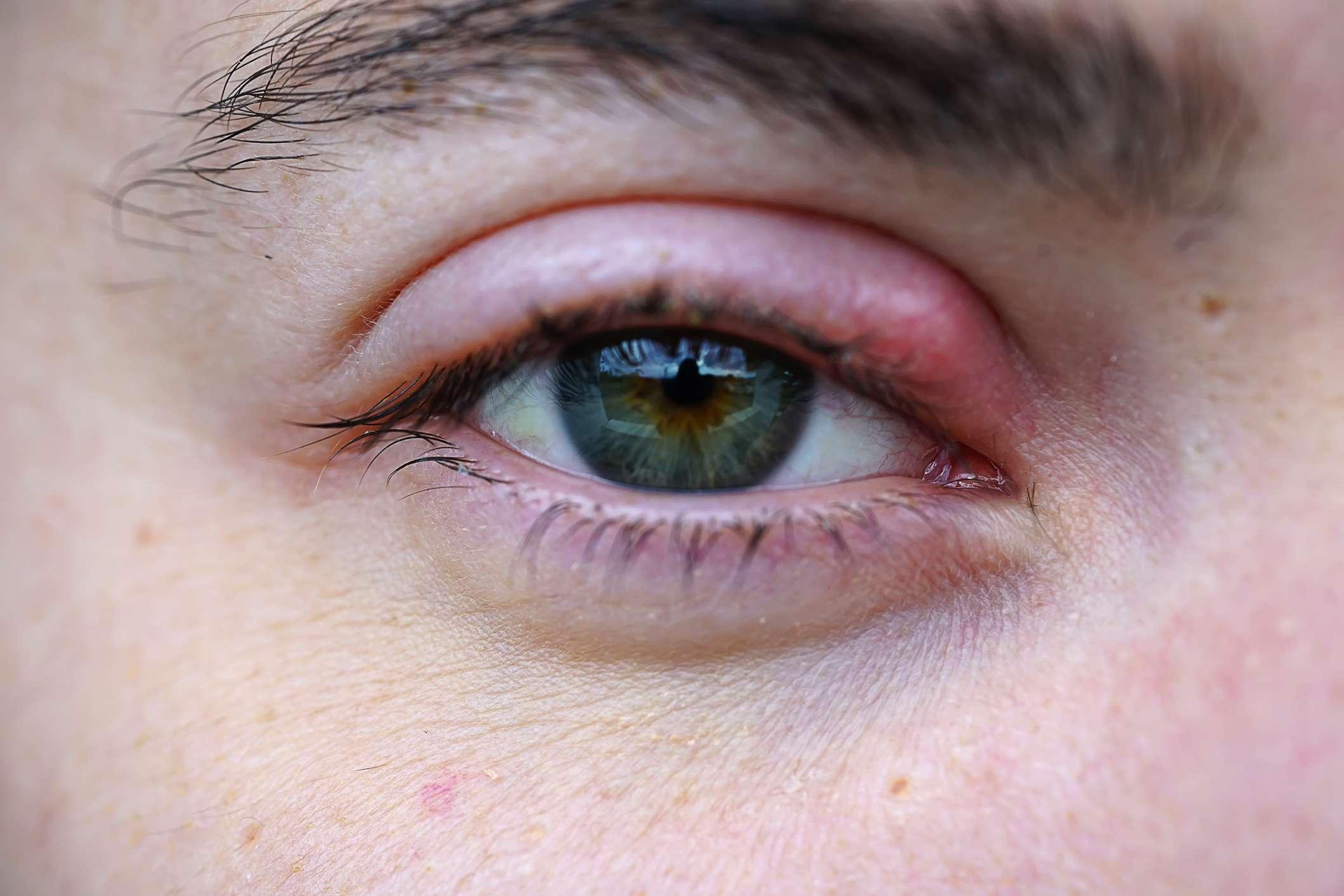 A stye in the eye.