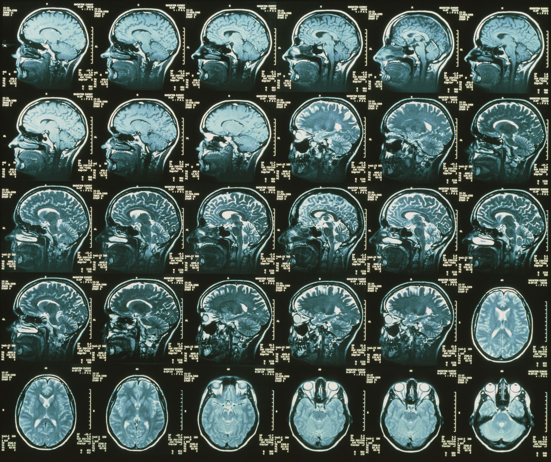 MRI Use in Multiple Sclerosis
