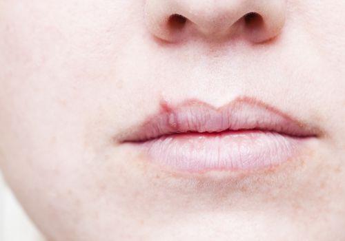 close up of cold sore on person's upper lip