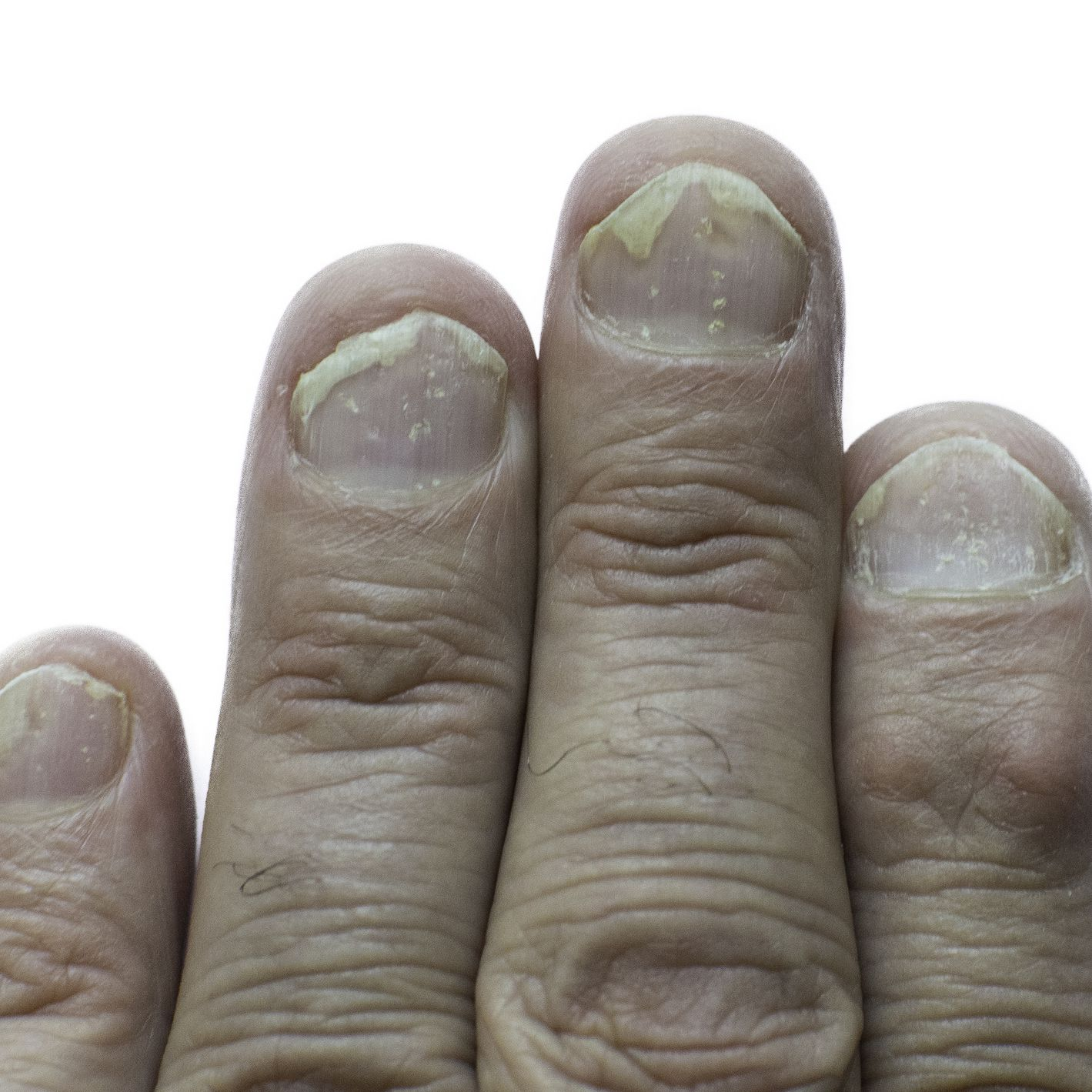 fluocinonide for nail psoriasis)