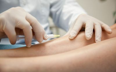 Sclerotherapy being performed on spider veins