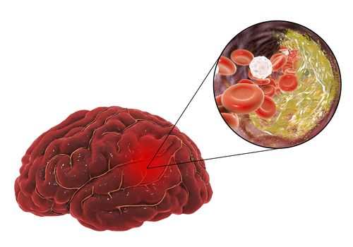 Illustration of a clogged artery in the brain
