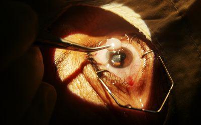 Close-up of surgeon performing cataract surgery