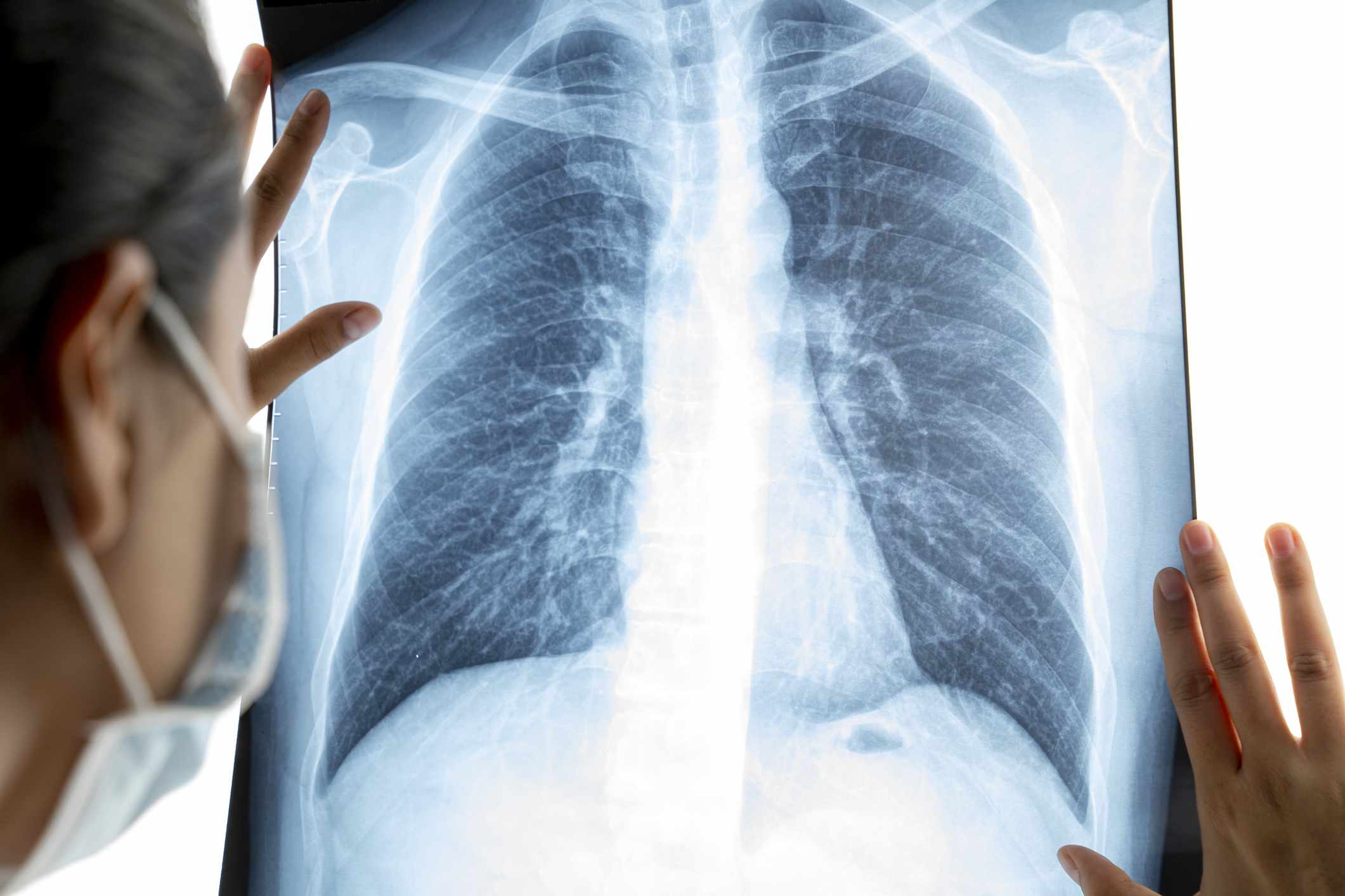 Chest Infection: Overview and More
