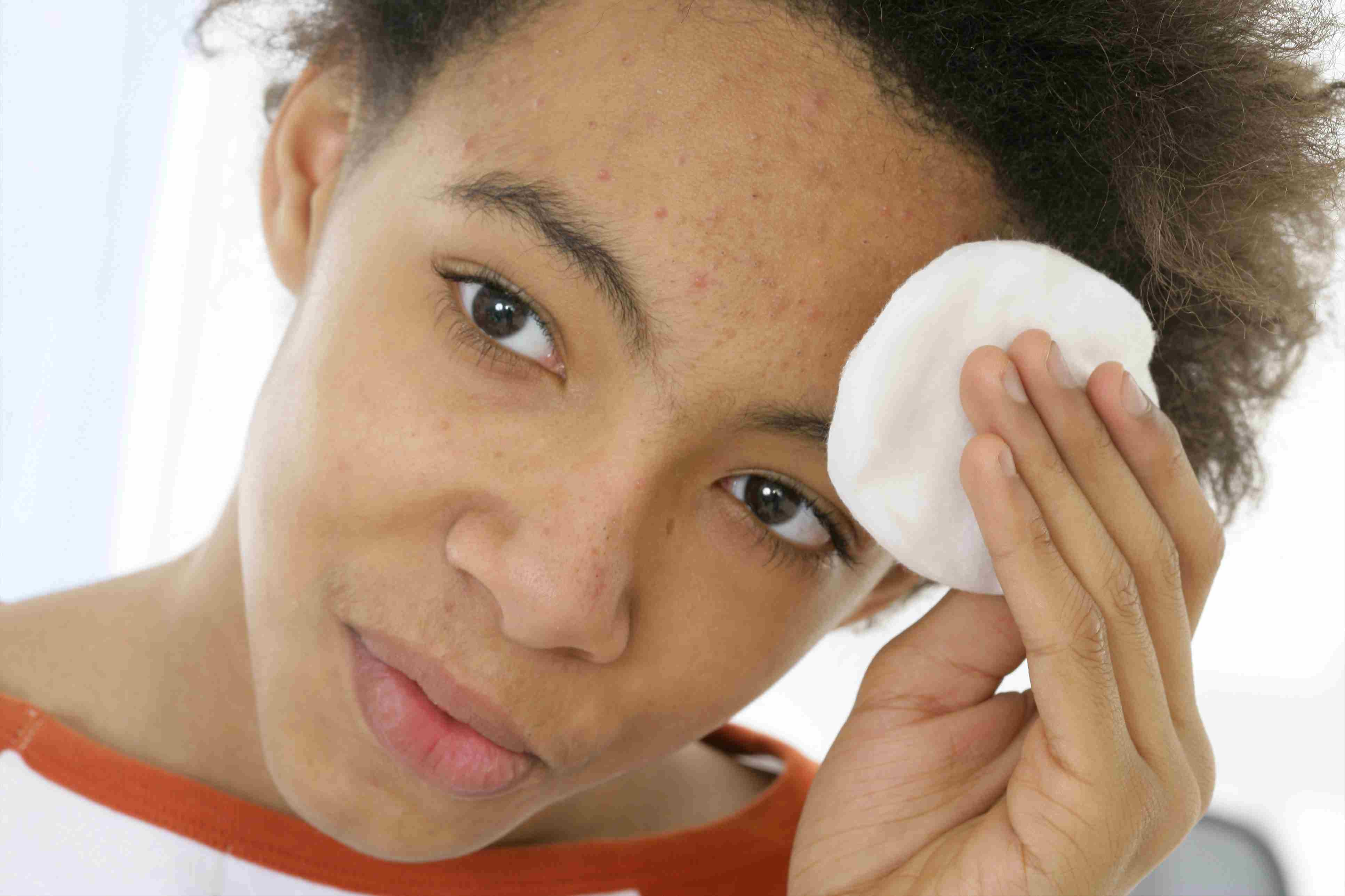Fast up to ways clear acne 3 Ways