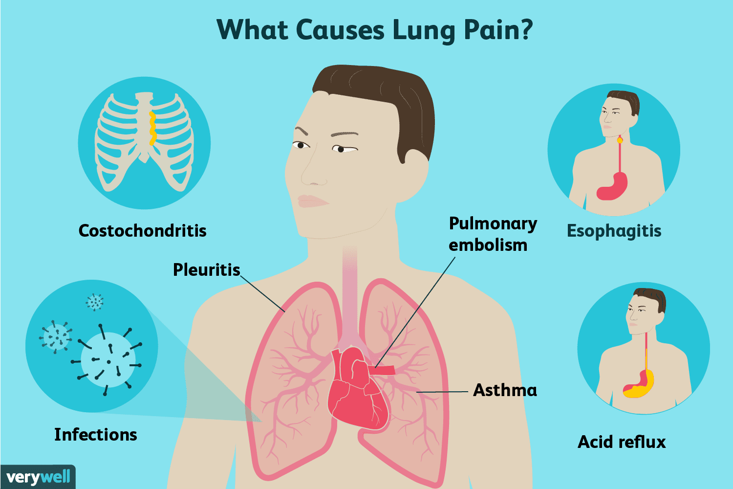 Lung Pain Causes Treatment And When To See A Doctor