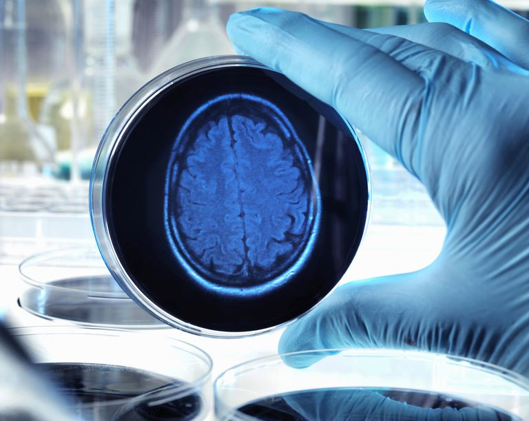 Petri dish with a brain scan depicting Alzheimer's
