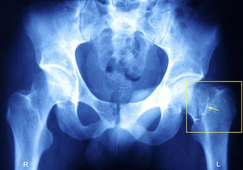 Xray of a broken hip