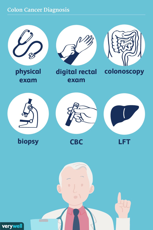 colon cancer diagnosis