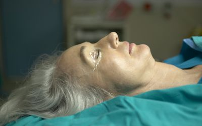 Woman on surgery table for blepharoplasty surgery