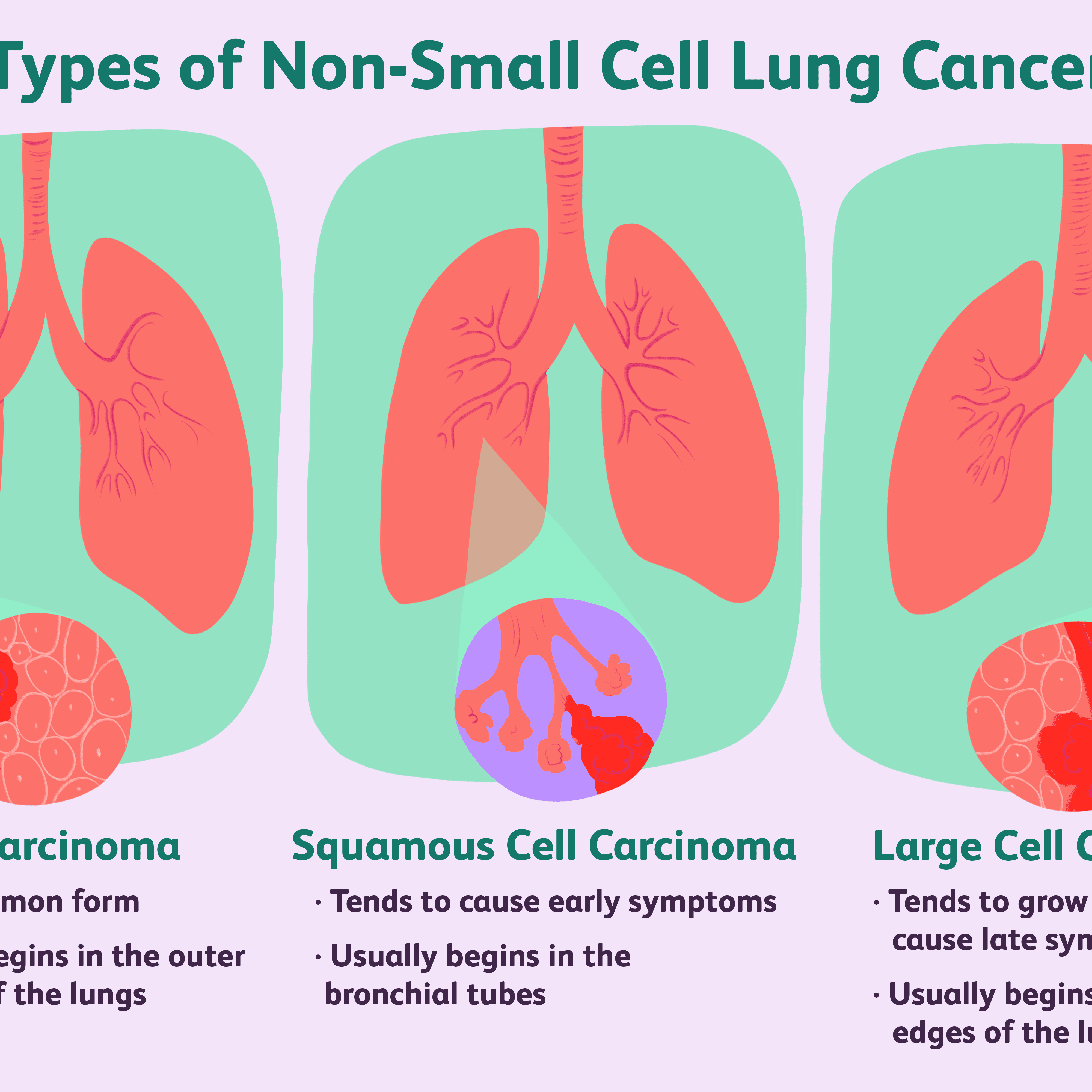 The Most Common Types Of Lung Cancer