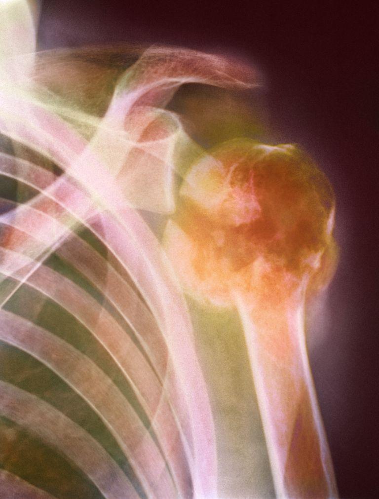 Bone marrow cancer, X-ray