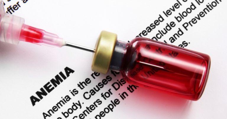 Síntomas de anemia en pacientes diabéticos