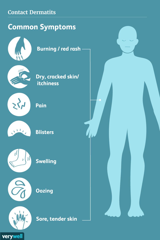 Contact Dermatitis Symptoms