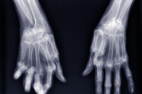 Distal Interphalangeal Predominant Psoriatic Arthritis