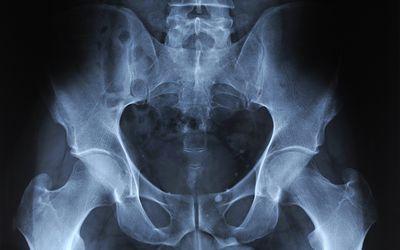 Xray of mature man's pelvis