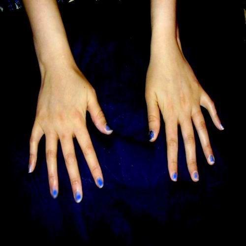 show arthritis in hands