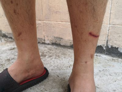 shins with diabetic dermopathy and wound on shin