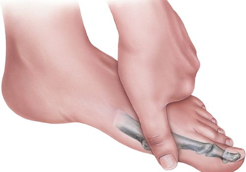 Foot - Hand Pressing on to Alleviate Pain