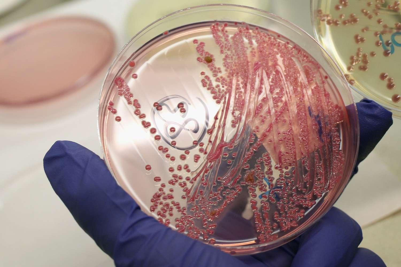 A culture of E. coli bacteria.