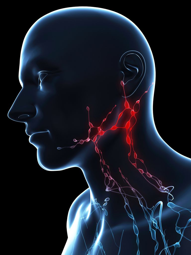 Conceptual artwork of lymph nodes in the neck (paratracheal) and down into the chest