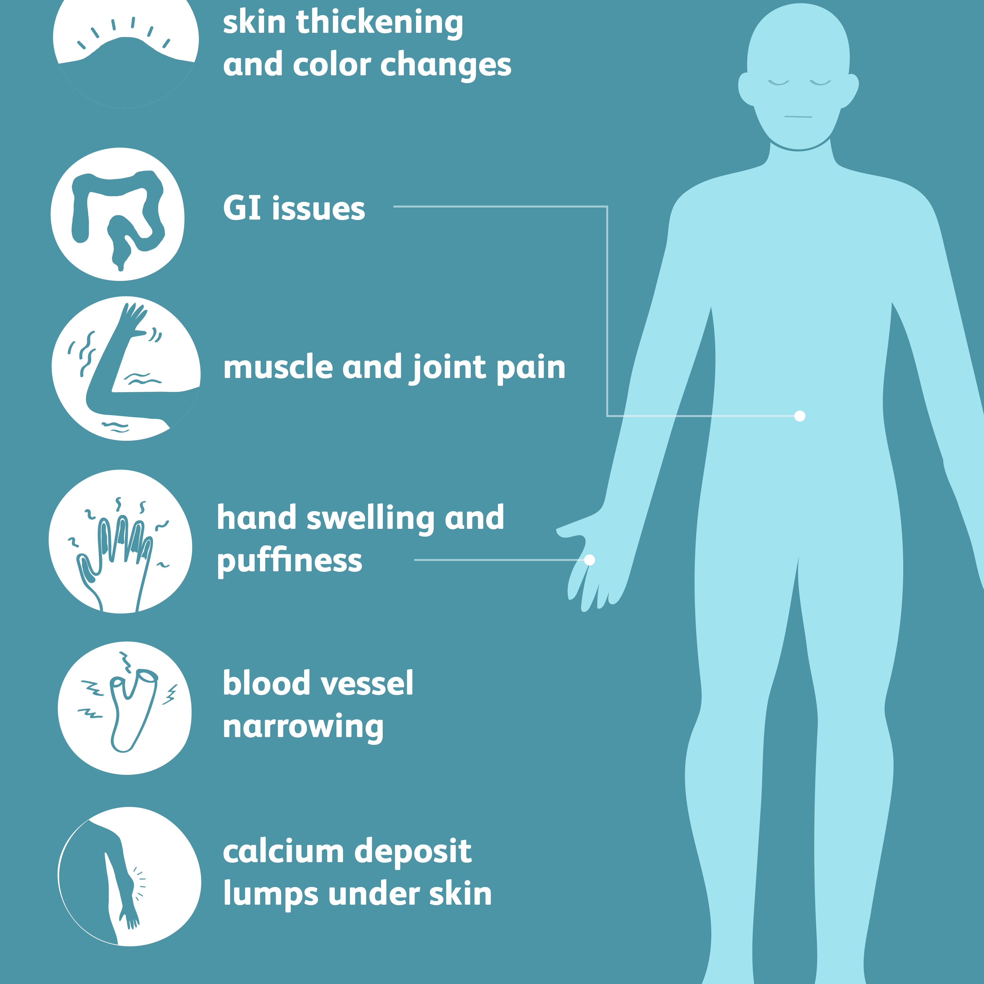 scleroderma symptoms