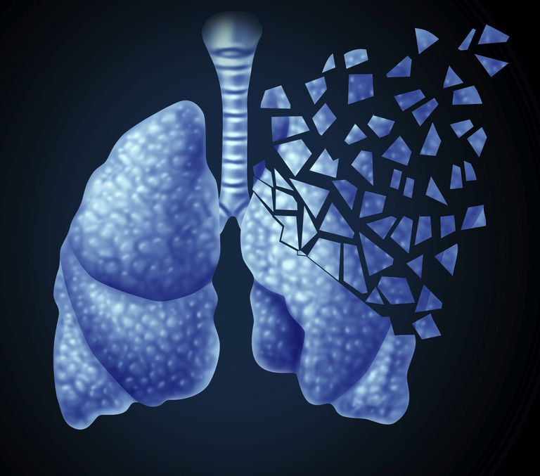 diagram of the lungs with pieces falling off one lung