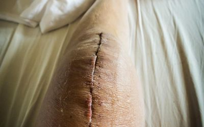 how to care for a surgical wound incision care made easy