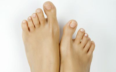 Cheilectomy Surgery for Big Toe Arthritis
