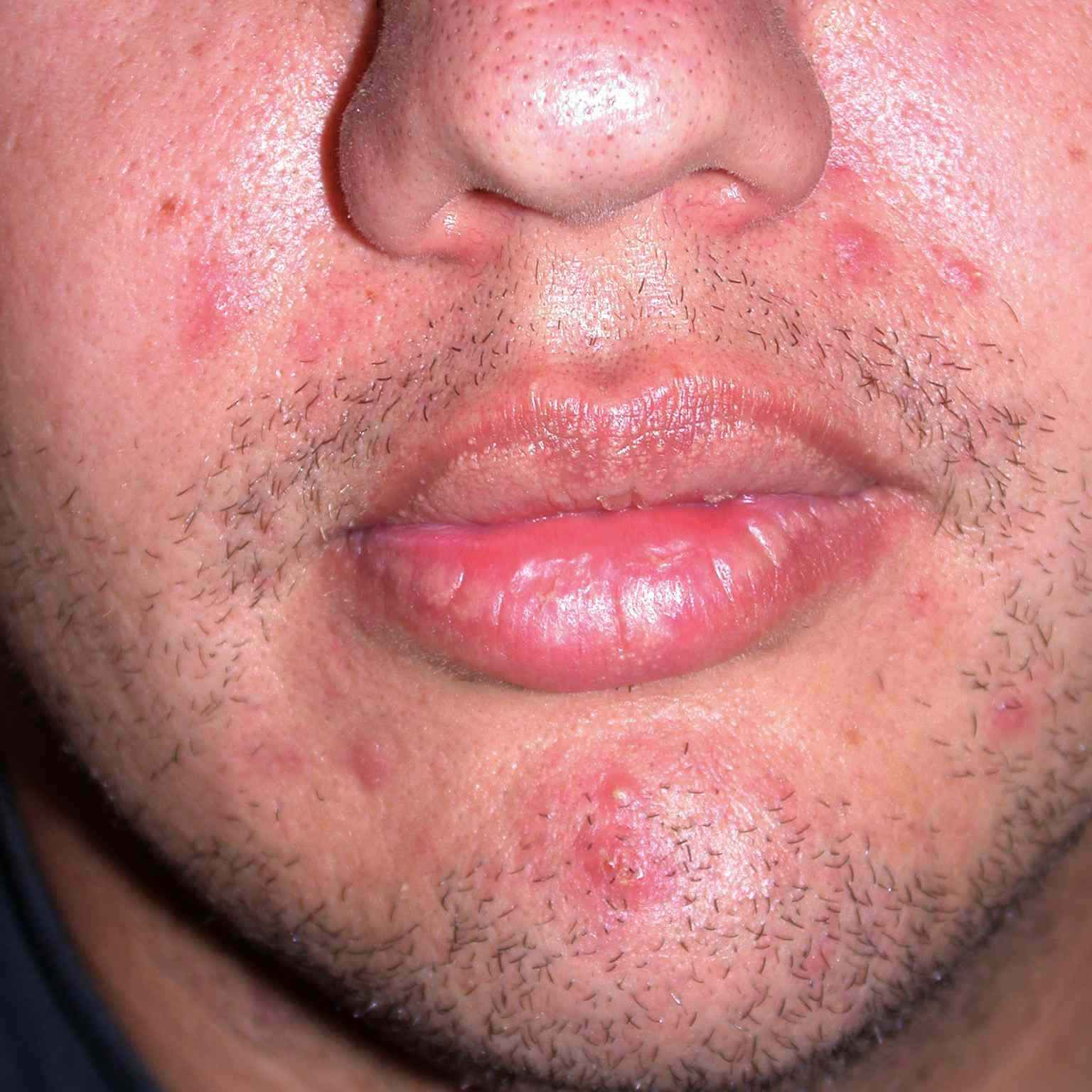 Treating Acne In Adult Males