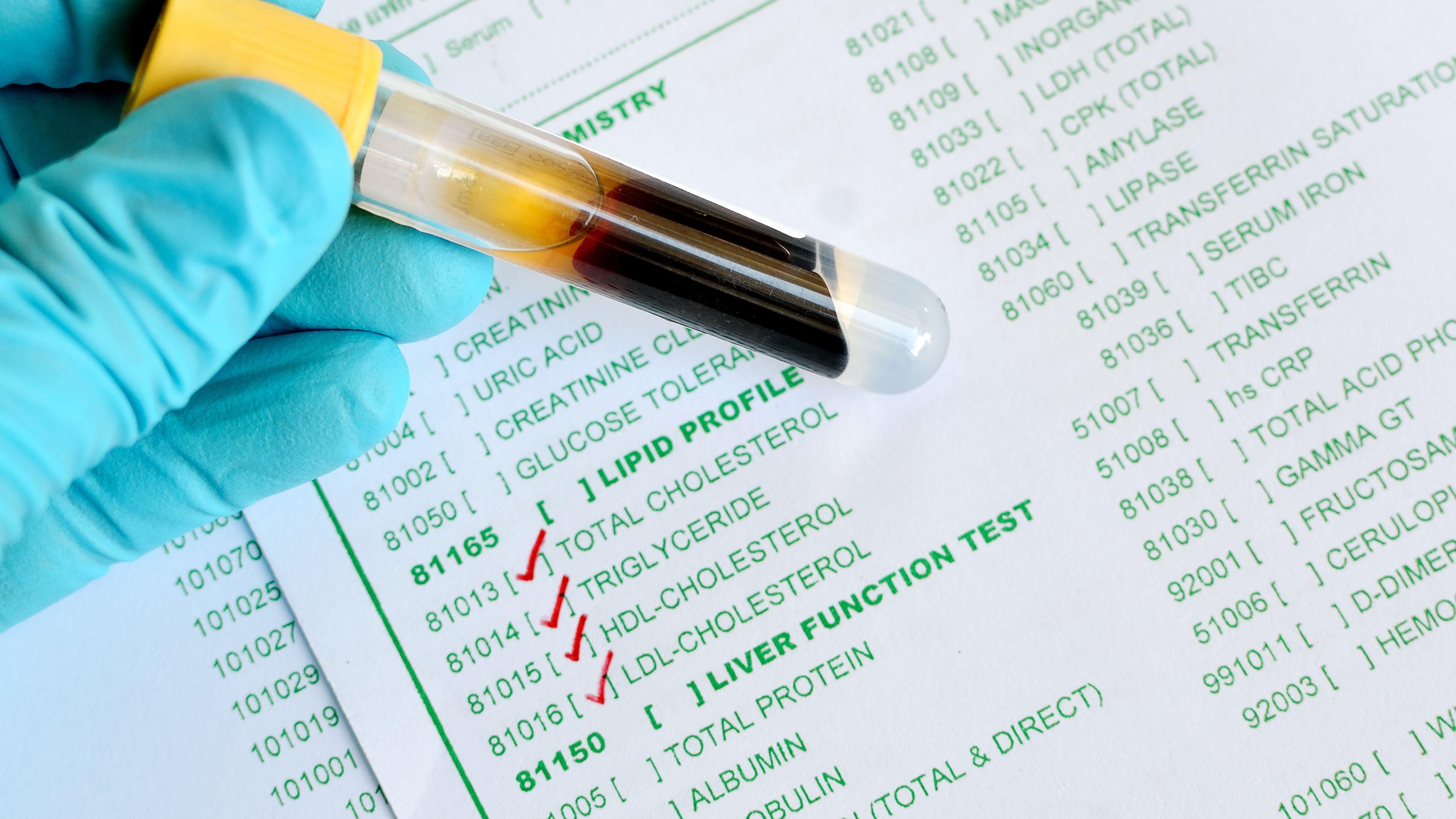 Vascepa (Icosapent Ethyl) for High Cholesterol
