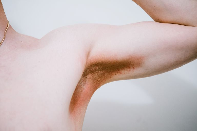 Man with rash in the armpit