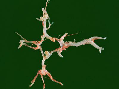 Berry aneurysm