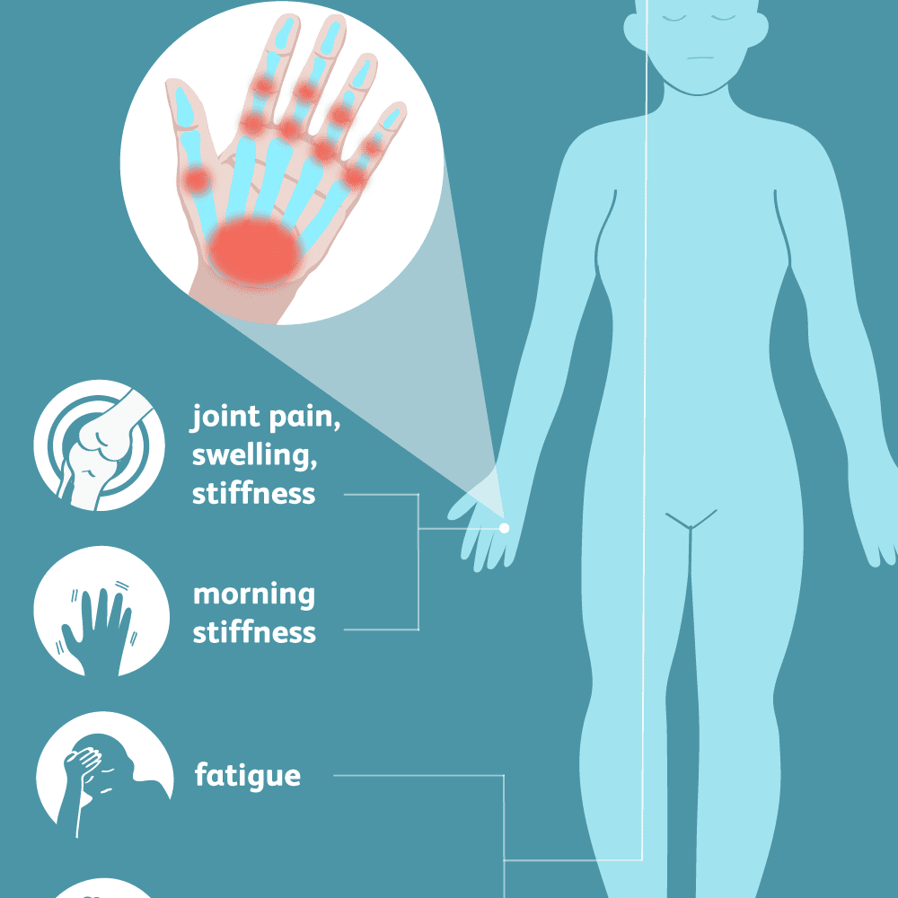 Rheumatoid Arthritis Signs Symptoms And Complications