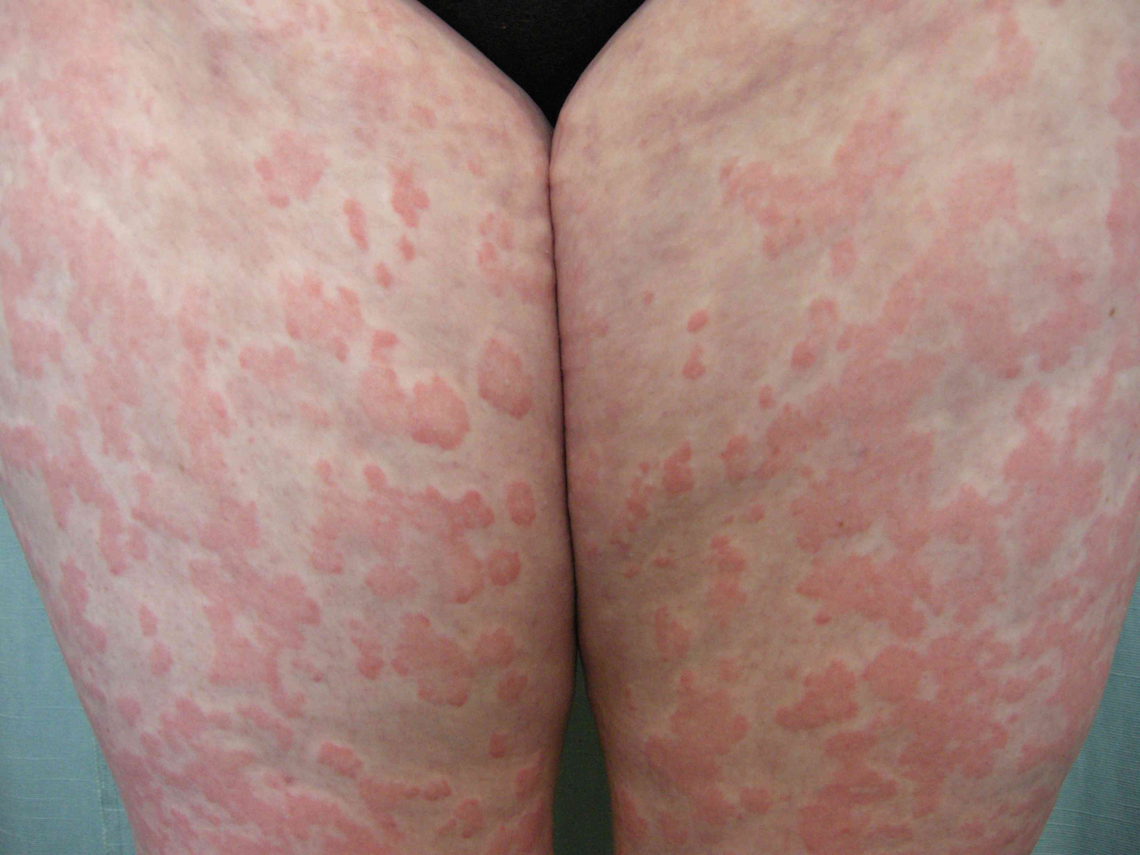 Urticaria Hives Signs Symptoms And Complications