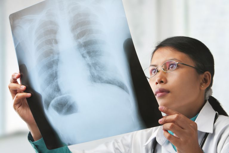 female doctor looking at an x-ray of lungs with COPD checking for lung cancer
