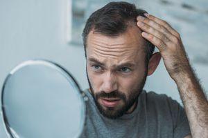 man with alopecia looking in mirror