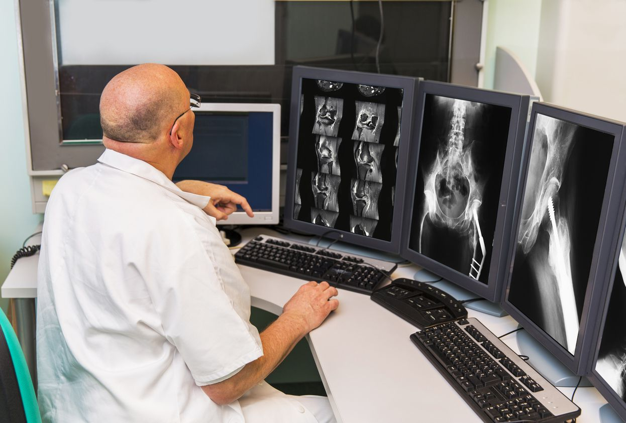 Doctor looking at multiple x-rays on a computer screen