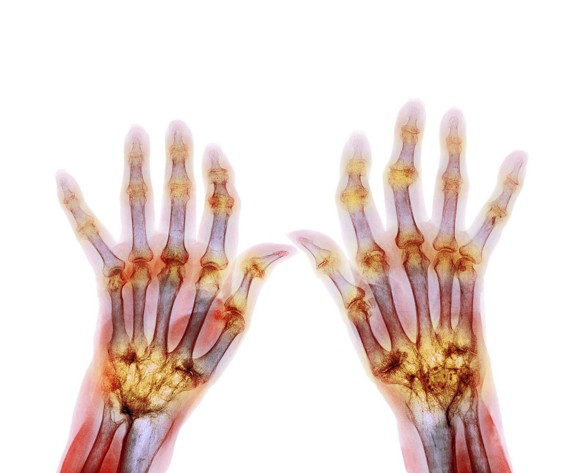 How Rheumatoid Arthritis Affects Each Part Of The Body