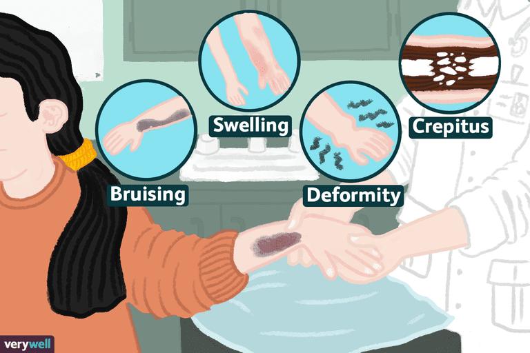signs of fractured bones