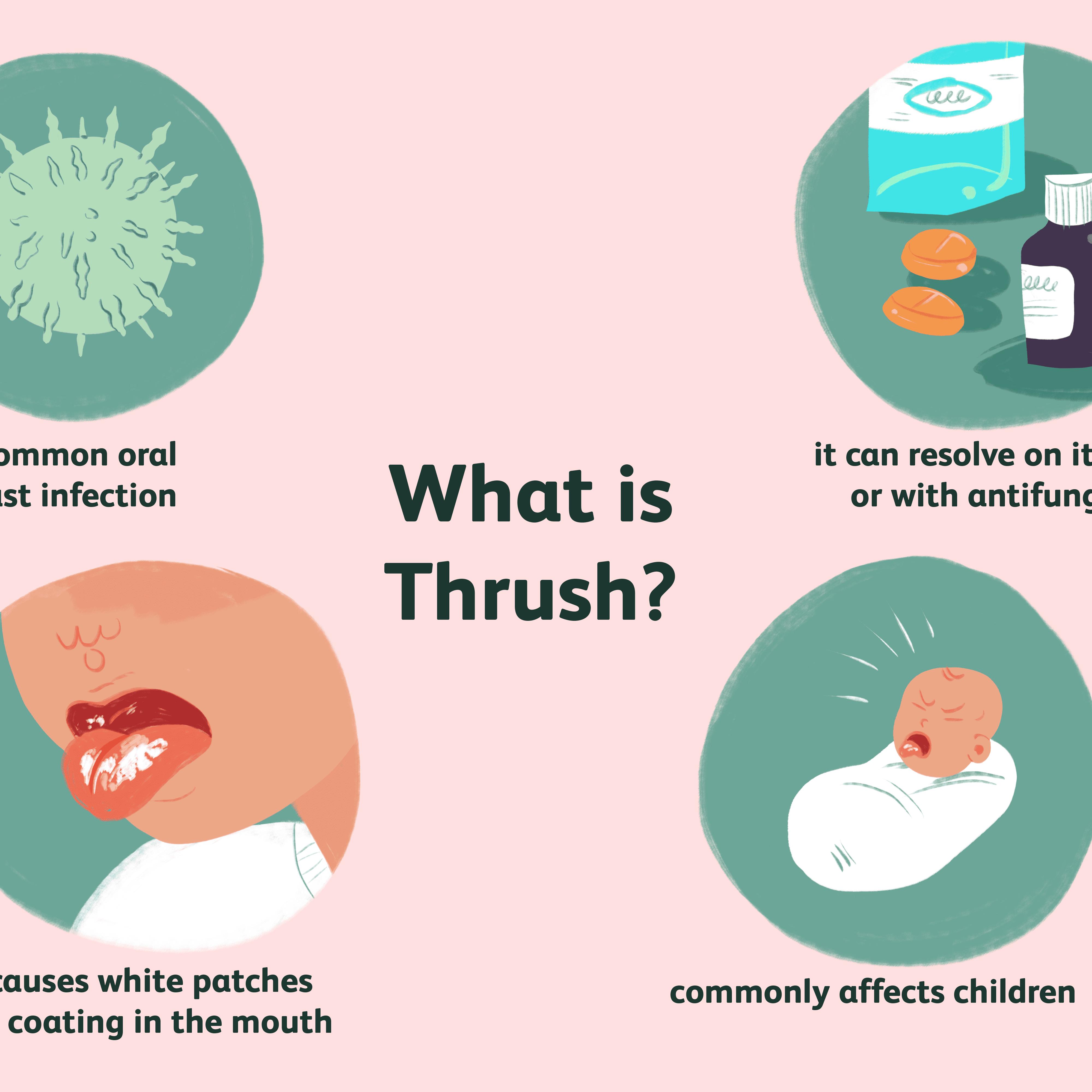 moniliasis thrush causes