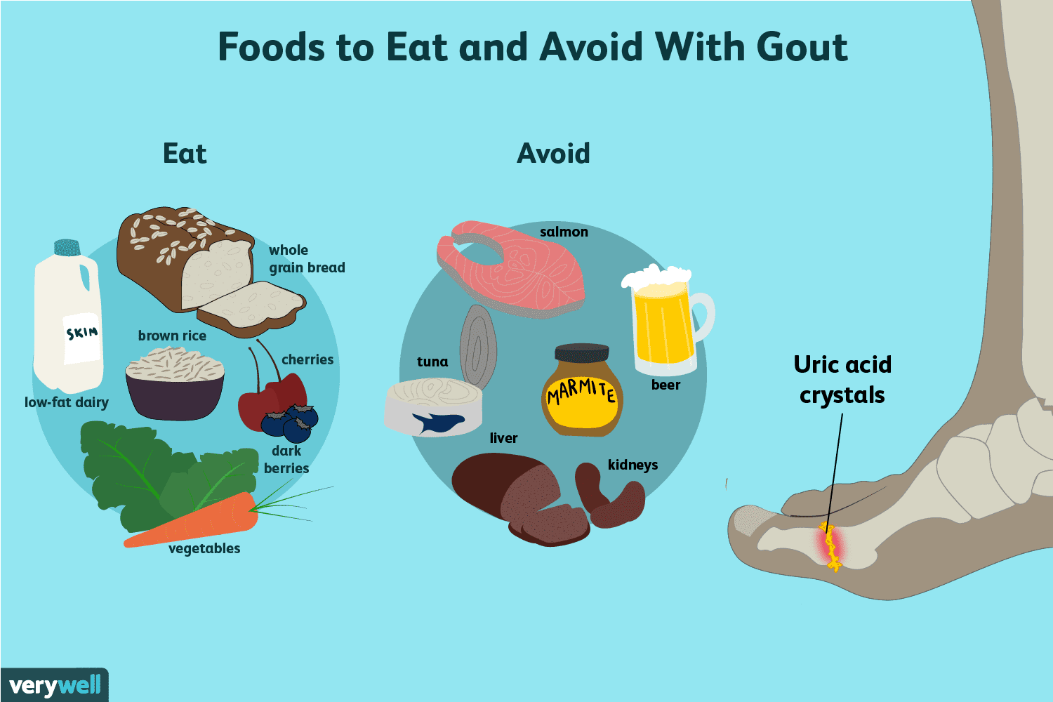 Foods to Eat and Avoid With Gout