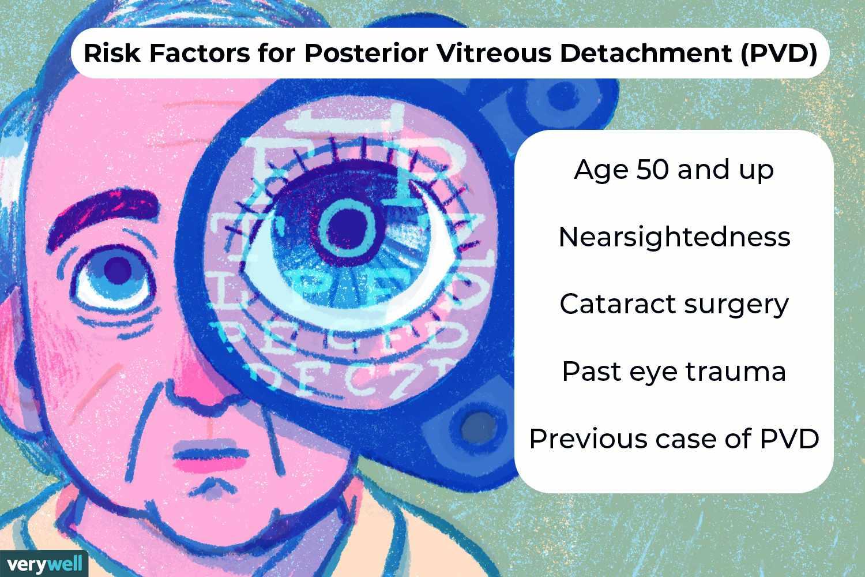 Risk Factors for Posterior Vitreous Detachment (PVD)