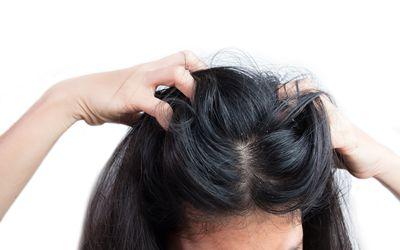 scratching scalp