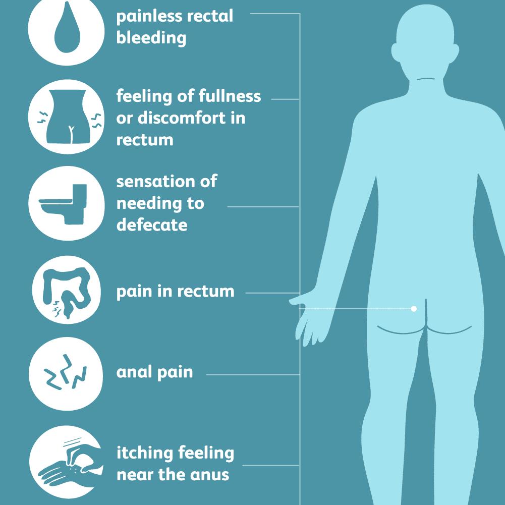Hemorrhoids Symptoms Causes Diagnosis And Treatment