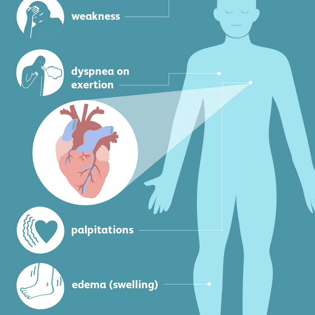Symptoms and Complications of Heart Failure