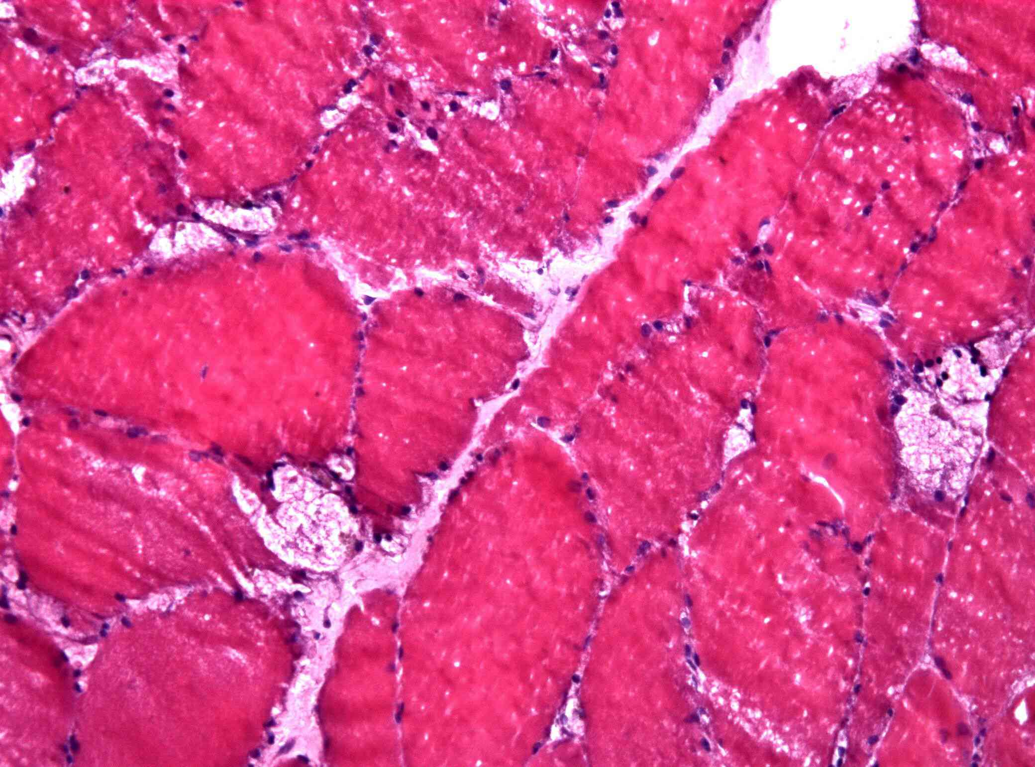 Muscle biopsy showing large vacuoles in a case of pompes disease